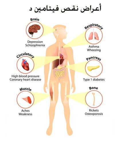 صورة اعراض نقص فيتامين د , اكتشف اعراض نقص فيتامين د