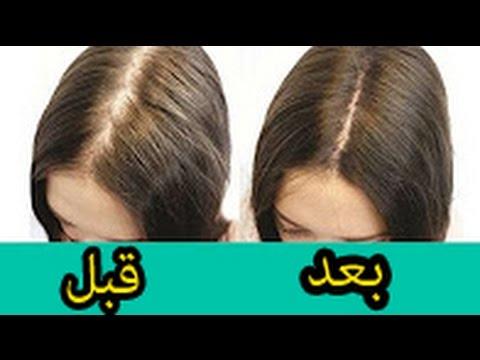 صورة علاج تساقط الشعر , افضل علاج للشعر