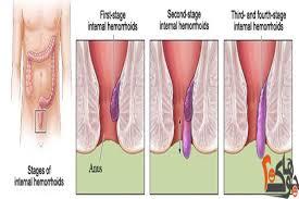 صور علاج البواسير , اقوي علاج للبواسير