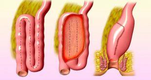 صور علاج التهاب الامعاء , طرق علاج التهاب الامعاء