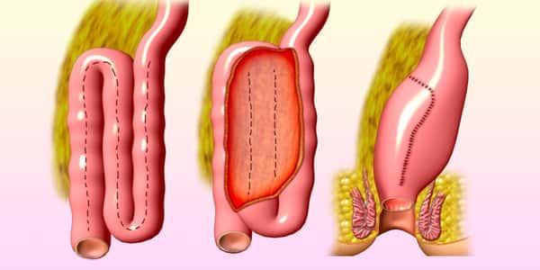 صورة علاج التهاب الامعاء , طرق علاج التهاب الامعاء