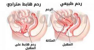 صور اسباب هبوط الرحم , ماهي اسباب هبوط الرحم