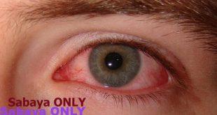 صورة اسباب ضغط العين , تعرف على سبب ضغط العين