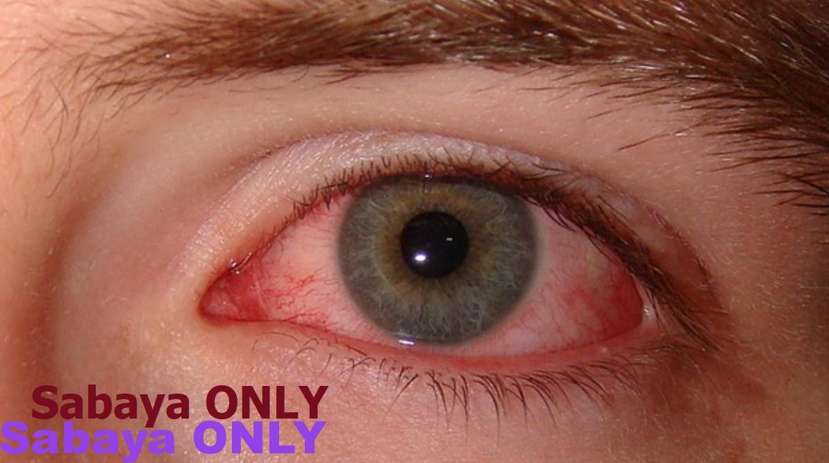 صور اسباب ضغط العين , تعرف على سبب ضغط العين