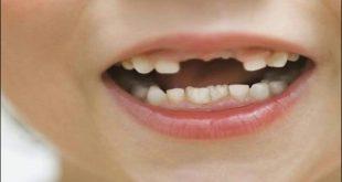 صور تفسير حلم سقوط الاسنان الامامية , تعرف على سقوط الاسنان في المنام