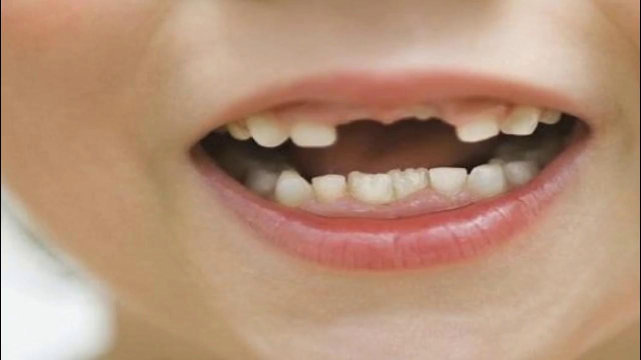 صورة تفسير حلم سقوط الاسنان الامامية , تعرف على سقوط الاسنان في المنام