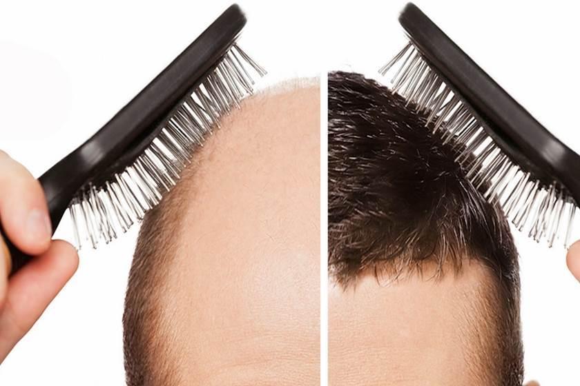 صورة زراعة الشعر بالمغرب، افضل الاماكن في زراعة الشعر