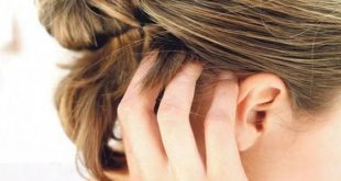العلاج الطبيعي للتخلص من القشره،التخلص من القشرة في الشعر نهائيا