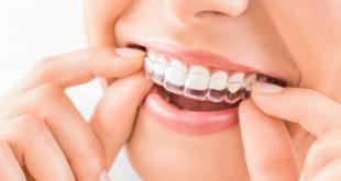 صورة تبييض الاسنان بالقوالب 7020 1 310x165